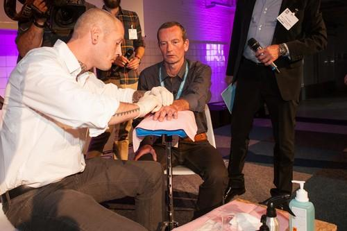 IDG Netherlands News Editor Rene Schoemaker having near-field communication (NFC) chip implanted in his hand.